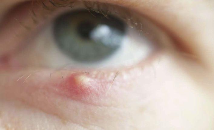 Воспаление сальной железы волосяной луковицы ресницы
