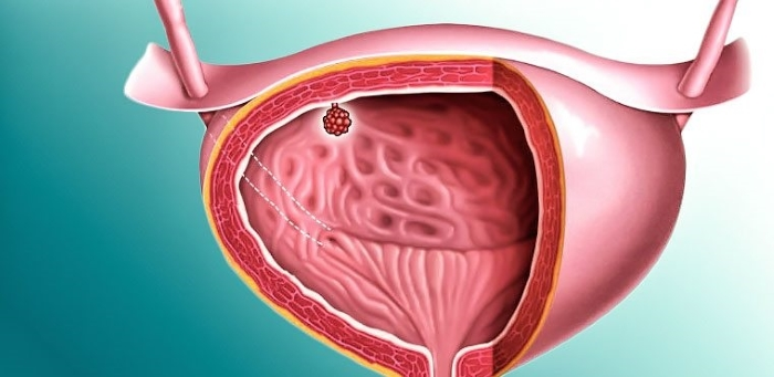 Папилломы мочевого пузыря - как распознать и вылечить болезнь