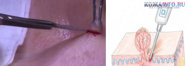 Что такое аногенитальные венерические бородавки причины и методы лечения