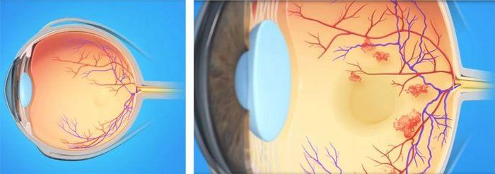 Венозный тромбоз глаз