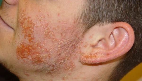 экзема - осложнение дерматита на лице