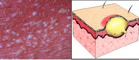 Особенности Пустулезного псориаза, формы болезни и лечение