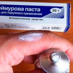 Tinedol крем от грибка: инструкция по применению, сколько стоит противогрибковый препарат?