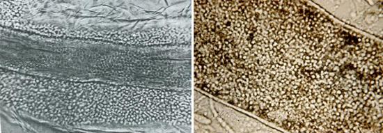 Как избавиться от грибка стопы раз и навсегда