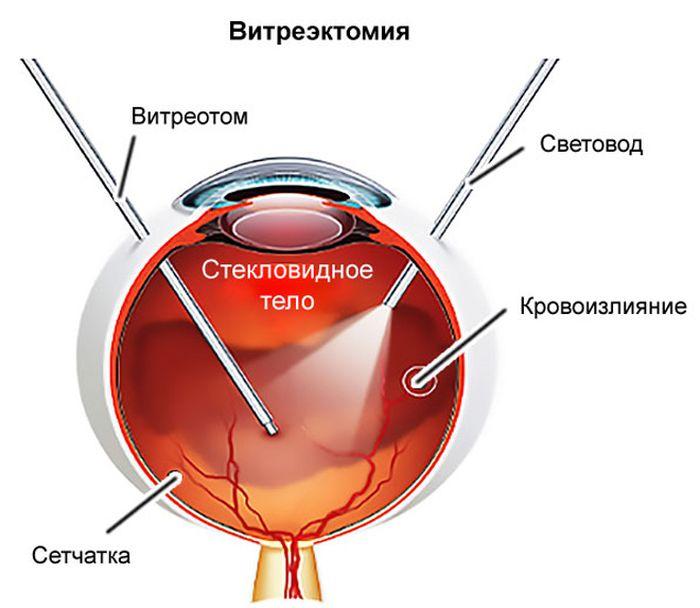 Витрэктомия при отслойке сетчатки