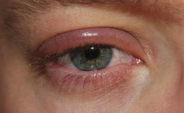 Опухший глаз