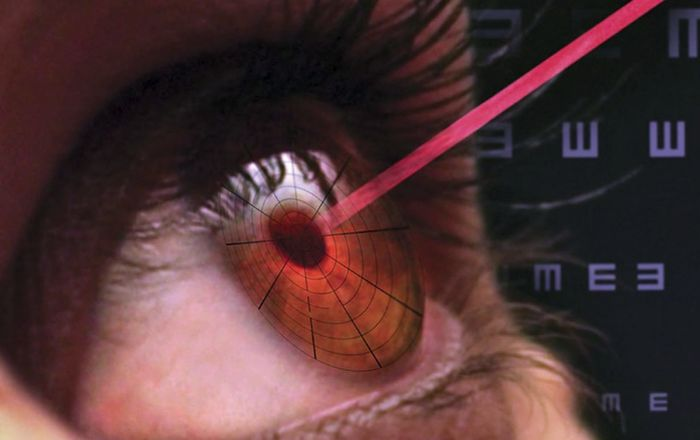 Хирургическое лечение и лазер