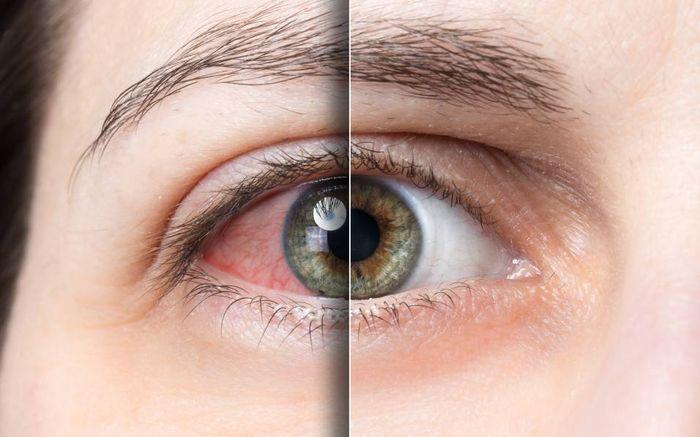 Покраснение склеры глаза