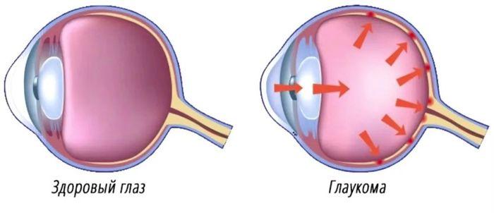 Здоровый глаз и при глаукоме