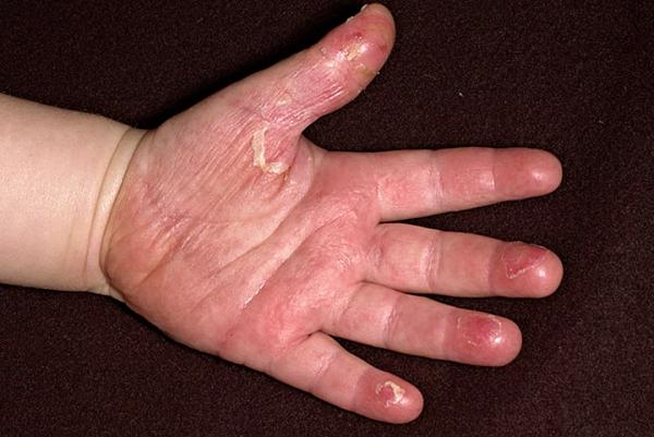 шелушение кожи при скарлатине