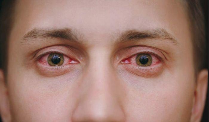 Заболевание органов зрительной системы