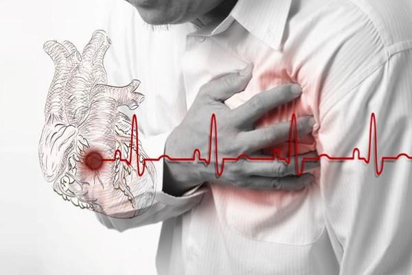 инфаркт миокарда - осложнение синдрома лайелла