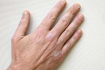 Как использовать дарсонваль при псориазе