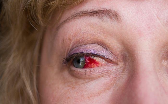 глазной инсульт