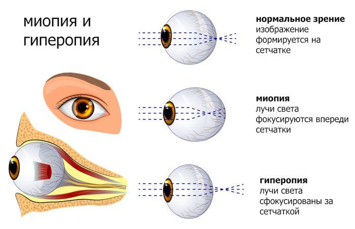 Гиперметропия или дальнозоркость