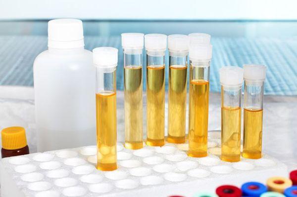анализ мочи на гормоны надпочечников