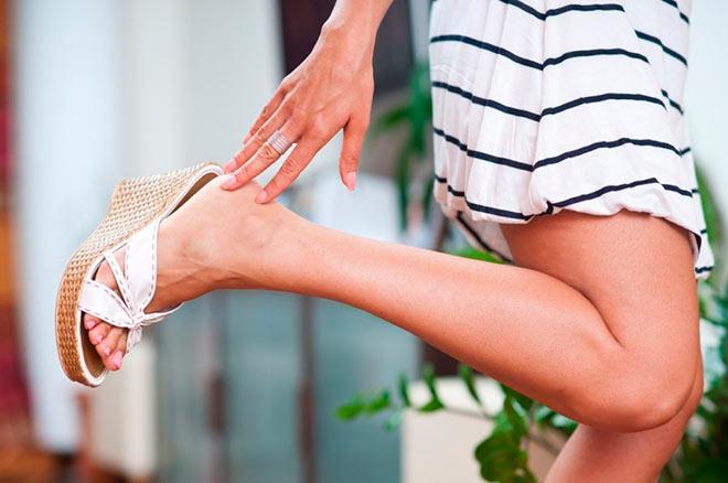 Причины и лечение варикоза ног