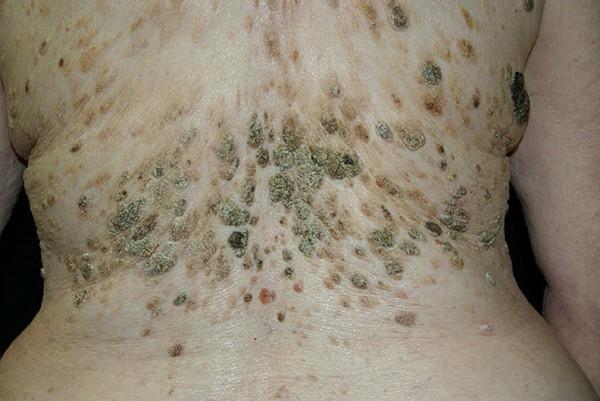 кератоз кожи