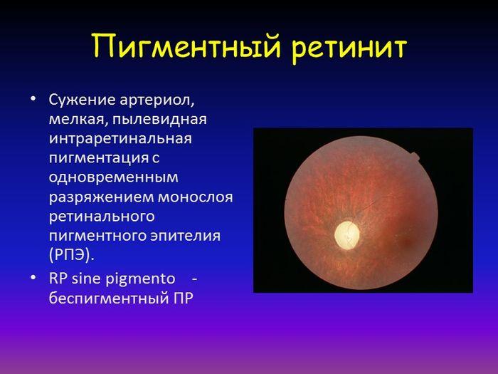Описание болезни глаза