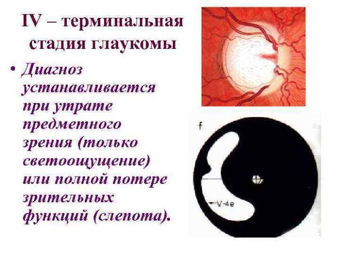 Терминальная (IV) стадия глаукомы