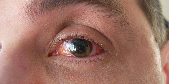 Глаз с отслоенной сетчаткой