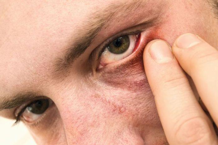 Покраснения глаз у мужчины