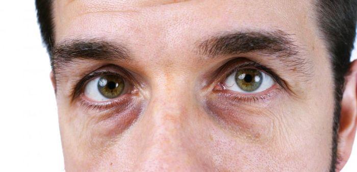 Опухшие глаза у мужчины