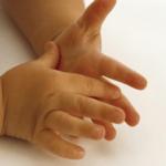 Гипергидроз ладоней и стоп у детей при грибке: признаки, симптомы и лечение