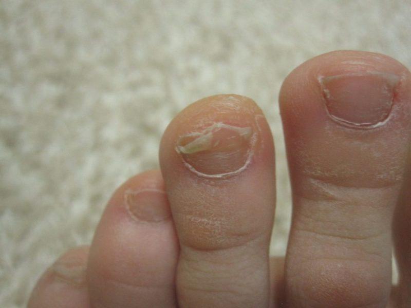 кто вылечил грибок ногтей на ногах запущенный