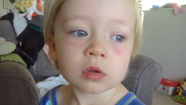 ребенок с припухлостями под глазами