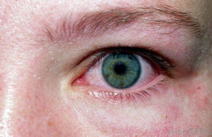 Симптоматика конъюктивита