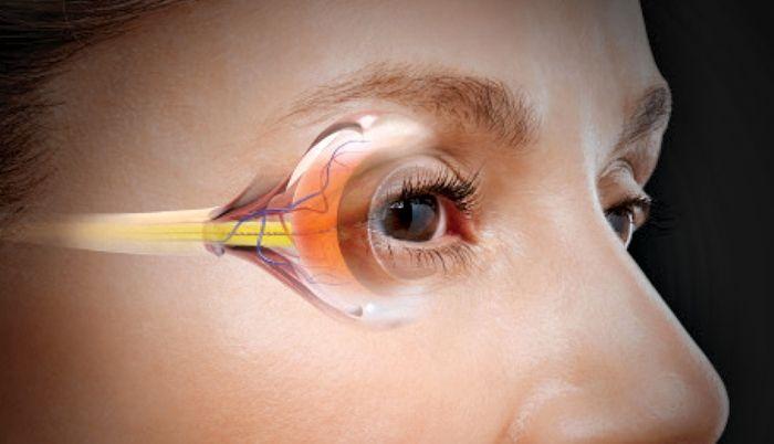 Заболевание глаз глаукома