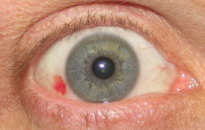 Красное пятно на белке глаза