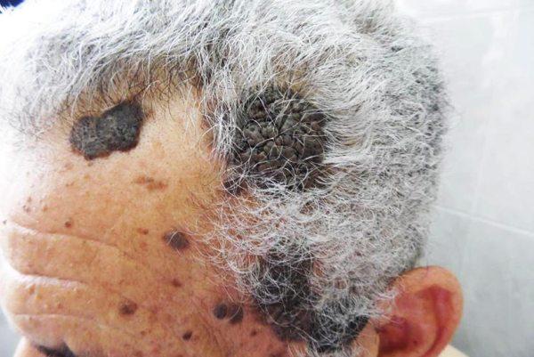 старческий кератоз