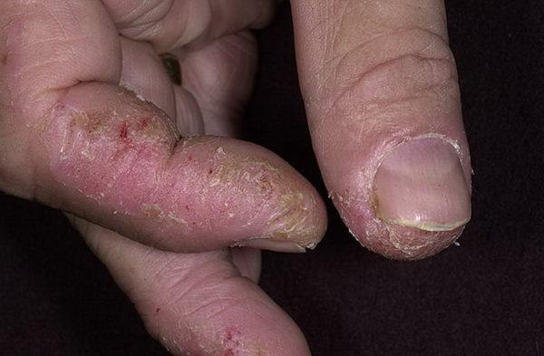 сухая экзема на пальцах рук