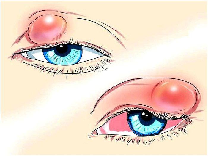 Офтальмологическое заболевание халязион