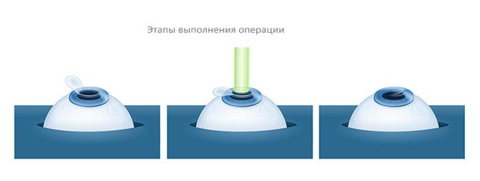 Этапы лазерной коррекции зрения
