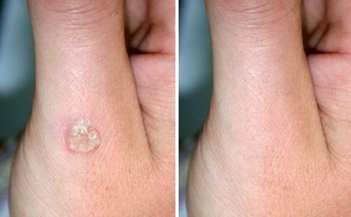 ПАПИЛЛОМЫ Папилломавирус человекаОксолиновая мазь от папиллом. Проверенный рецепт.Самое популярное