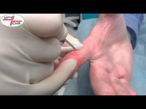 Насколько безопасно и результативно удаление бородавок лазером