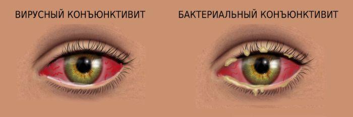 Здоровый глаз и бактериальный коньюктивит