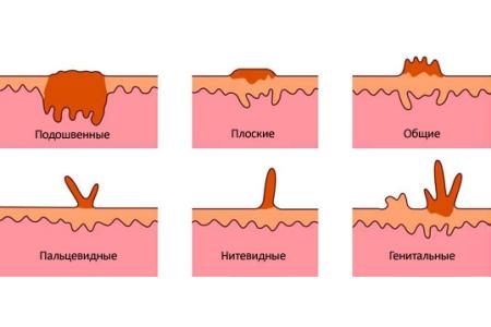 Остроконечные папилломы у мужчин и женщин причины, осложнения и лечение
