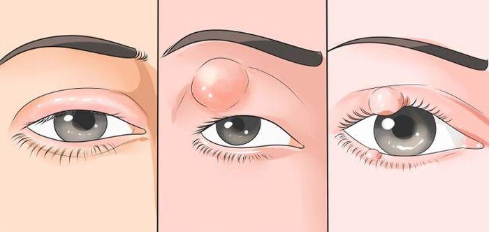 Халязион - воспалительный процесс