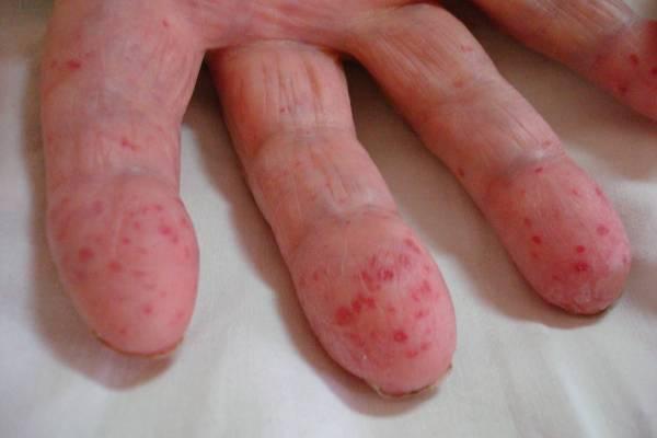 телеангиэктазии при болезни Рандю-Ослера