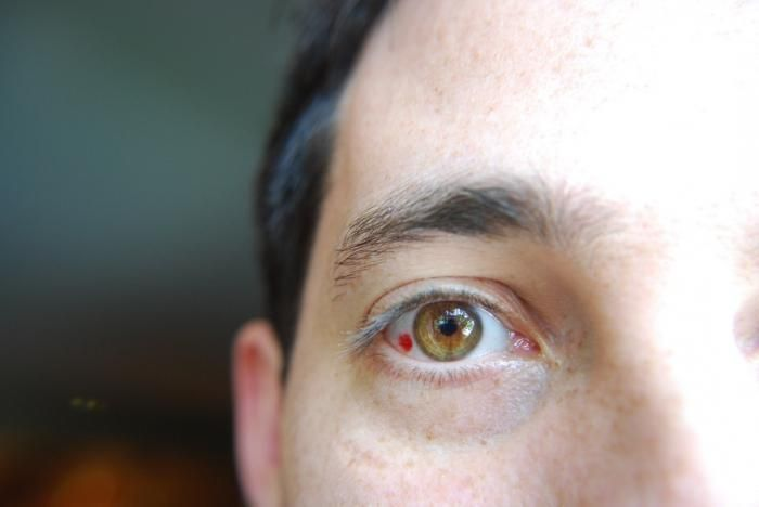 Лопнувший сосуд в глазу у мужчины