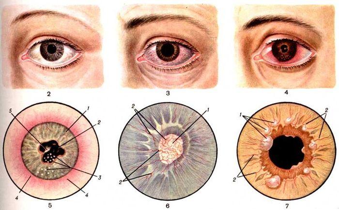 Заболевания радужной оболочки глаза