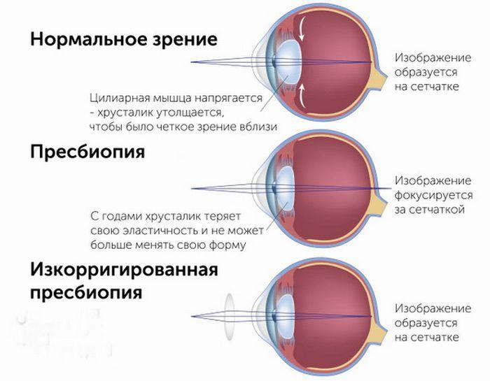 Пресбиопия (возрастное снижение зрения)