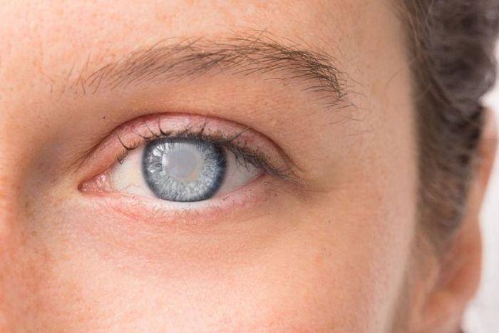 Помутнение на хрусталике глаза