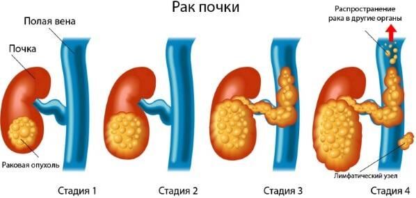 стадии рака почек