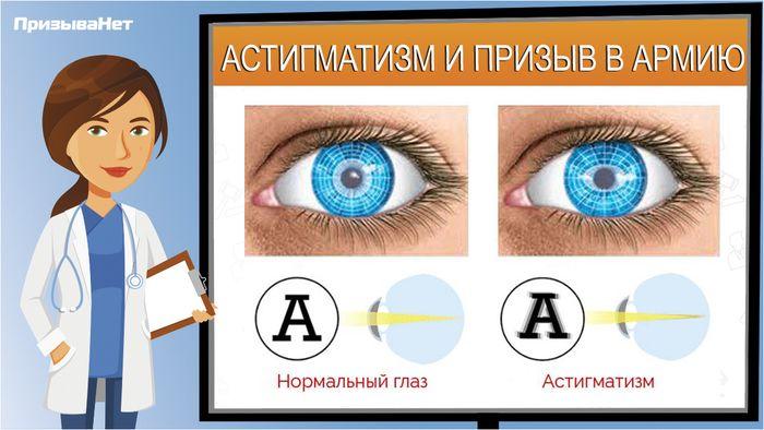 Заболевание глаз - астигматизм