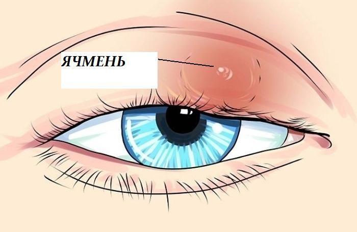 Ячмень на глазу